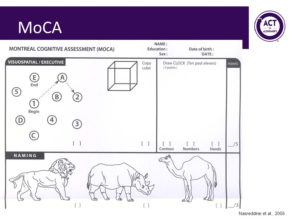 MoCA Speaker Notes: The MoCA is considered by many to be the most sensitive cognitive screening tool in existence at the current time.
