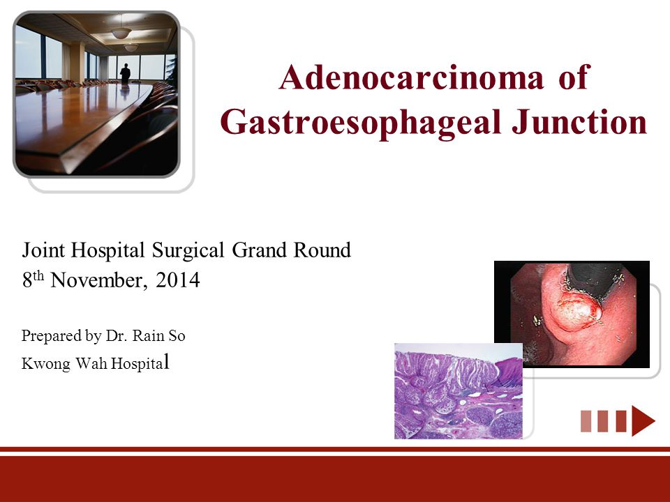 Adenocarcinoma Of Gastroesophageal Junction Ppt Video