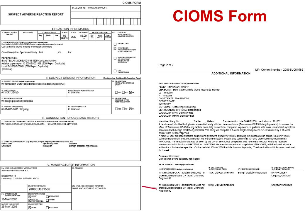 CIOMS Form