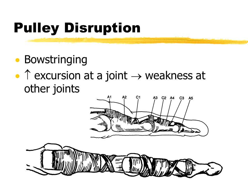 Pulley Disruption Bowstringing