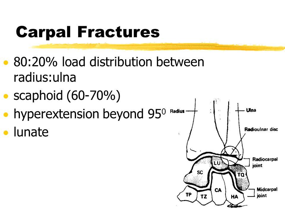 Carpal Fractures 80:20% load distribution between radius:ulna