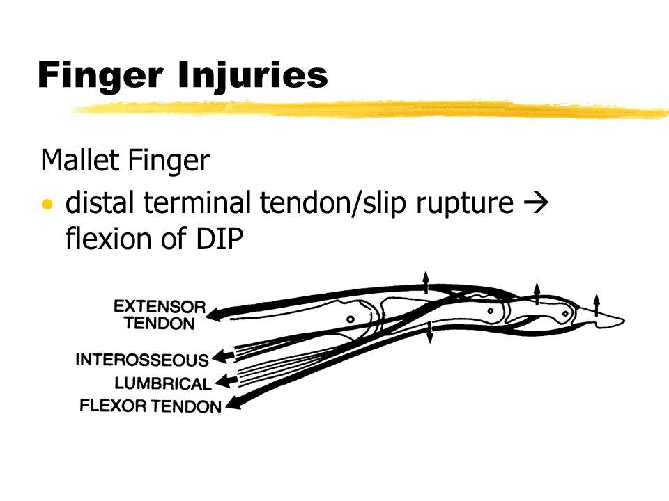 Finger Injuries Mallet Finger