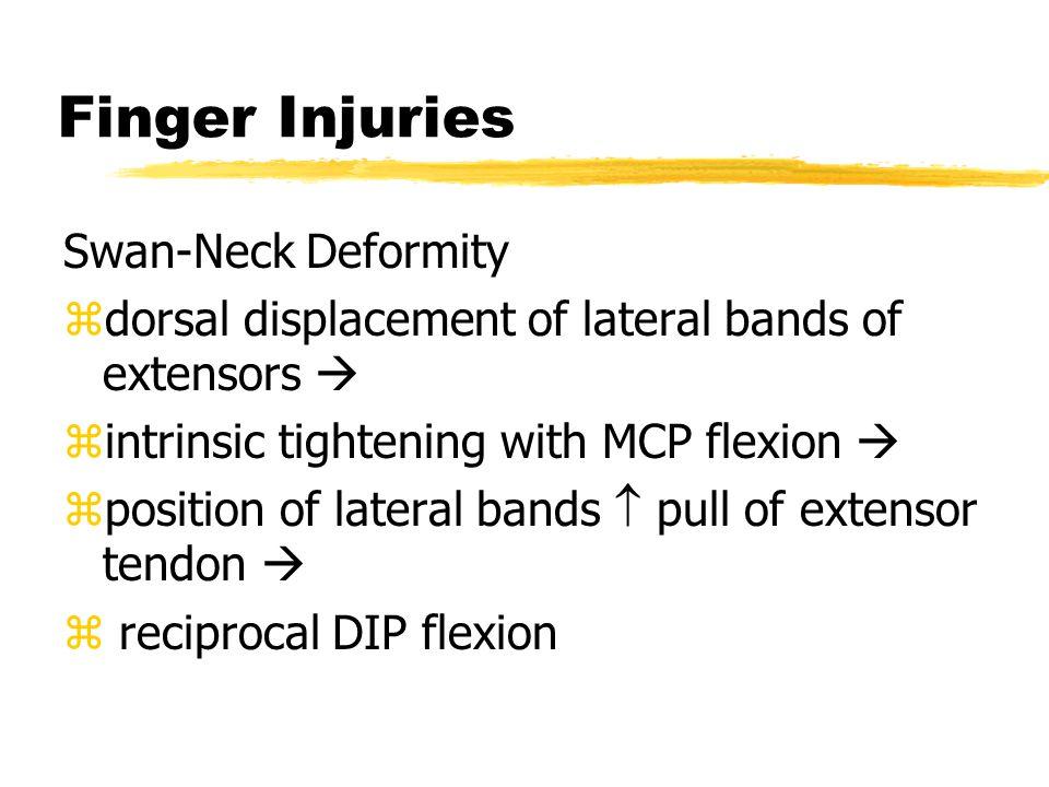 Finger Injuries Swan-Neck Deformity