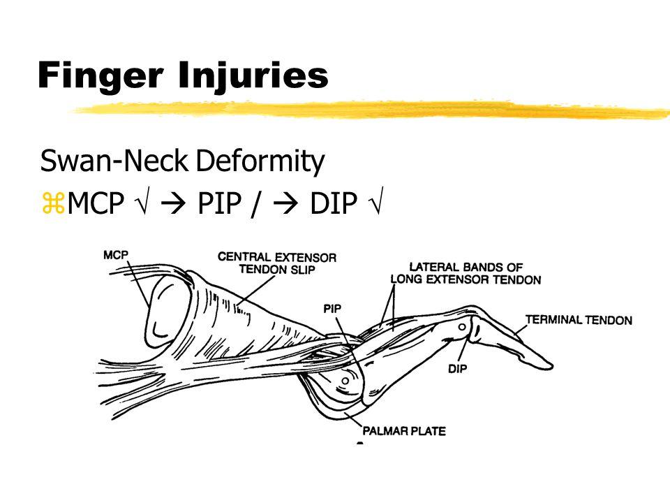 Finger Injuries Swan-Neck Deformity MCP   PIP /  DIP 