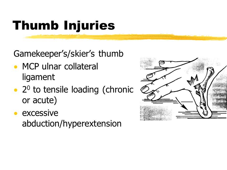 Thumb Injuries Gamekeeper's/skier's thumb