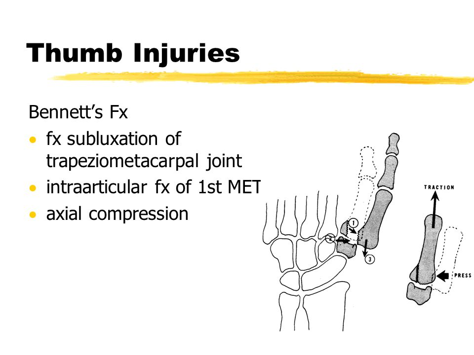 Thumb Injuries Bennett's Fx fx subluxation of trapeziometacarpal joint