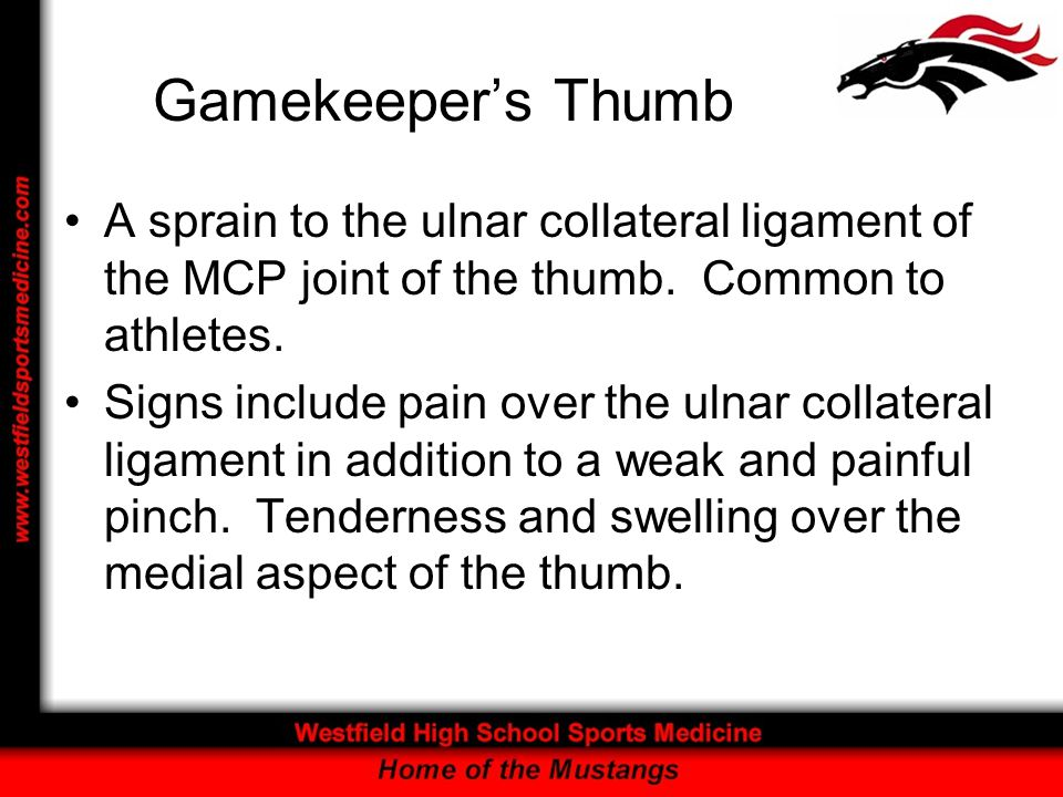 Gamekeeper's Thumb A sprain to the ulnar collateral ligament of the MCP joint of the thumb. Common to athletes.