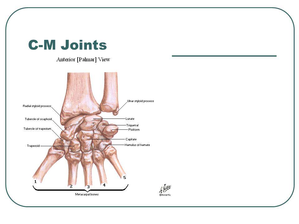 C-M Joints