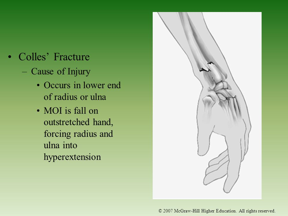 Colles' Fracture Cause of Injury Occurs in lower end of radius or ulna