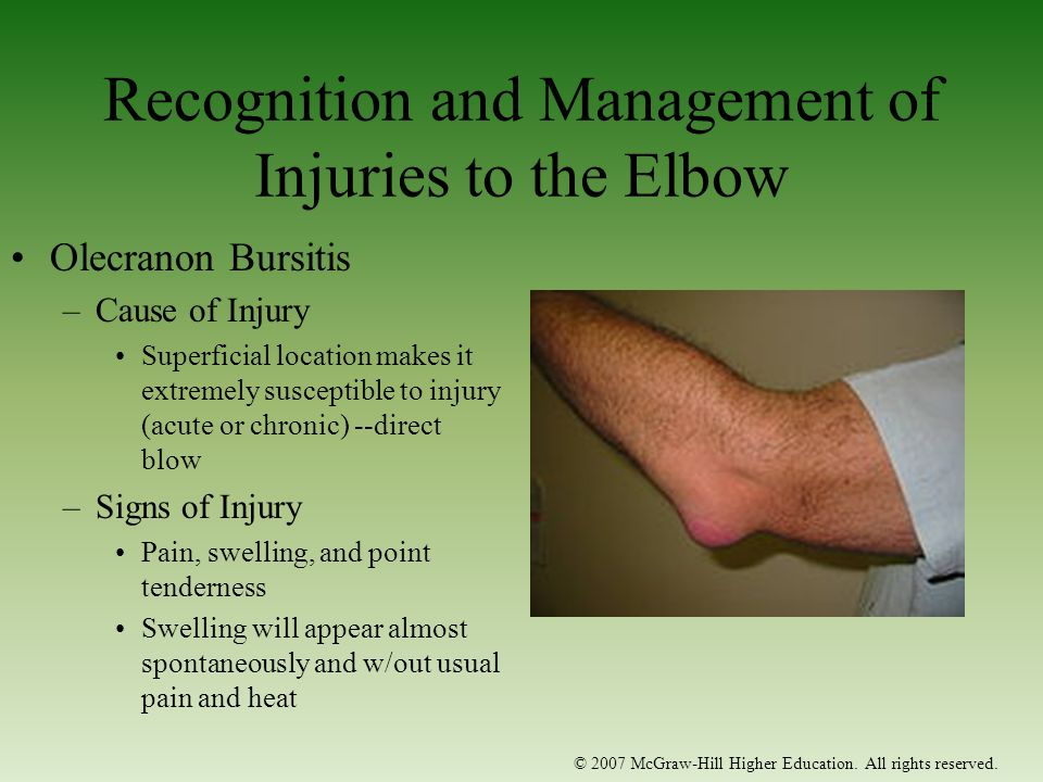 Recognition and Management of Injuries to the Elbow