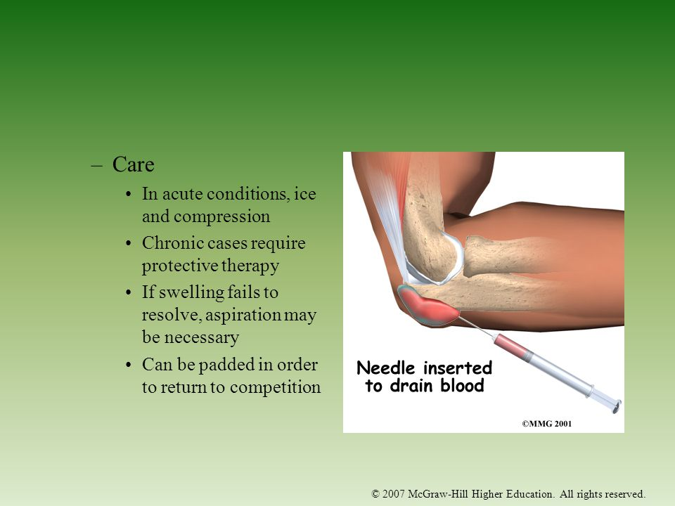 Care In acute conditions, ice and compression