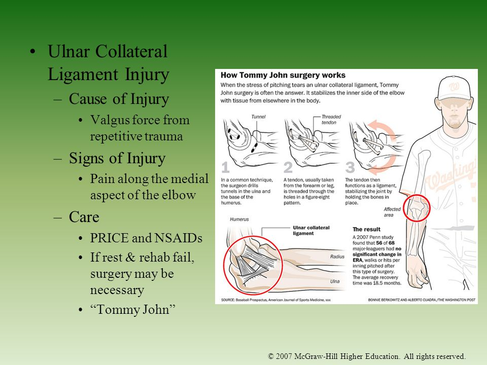 The Elbow, Forearm and Wrist - ppt download