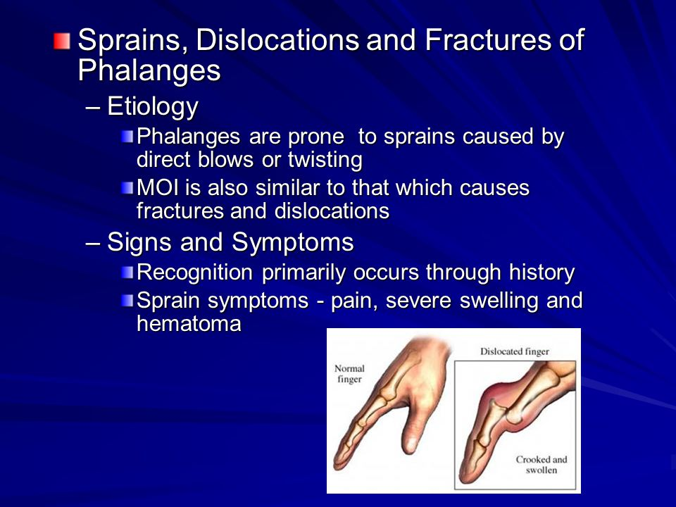 Sprains, Dislocations and Fractures of Phalanges