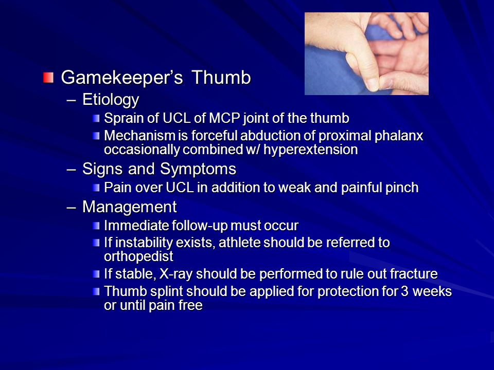 Gamekeeper's Thumb Etiology Signs and Symptoms Management