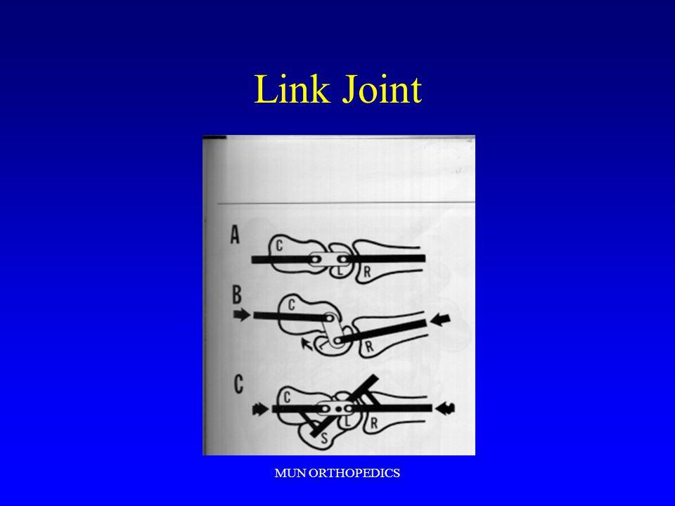 Link Joint MUN ORTHOPEDICS
