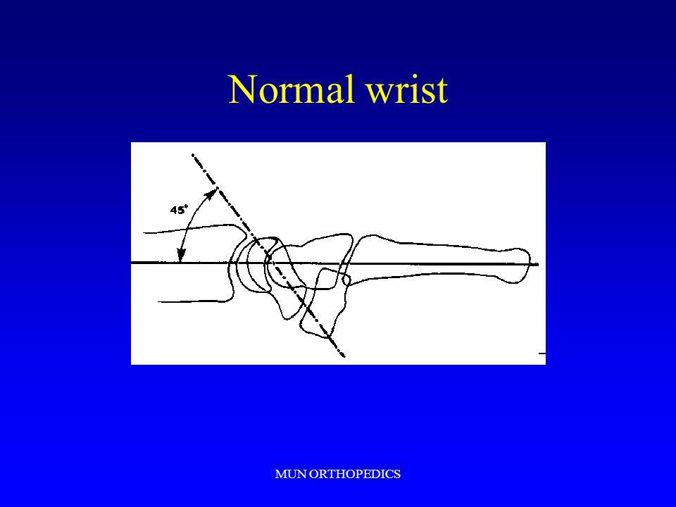 Normal wrist MUN ORTHOPEDICS