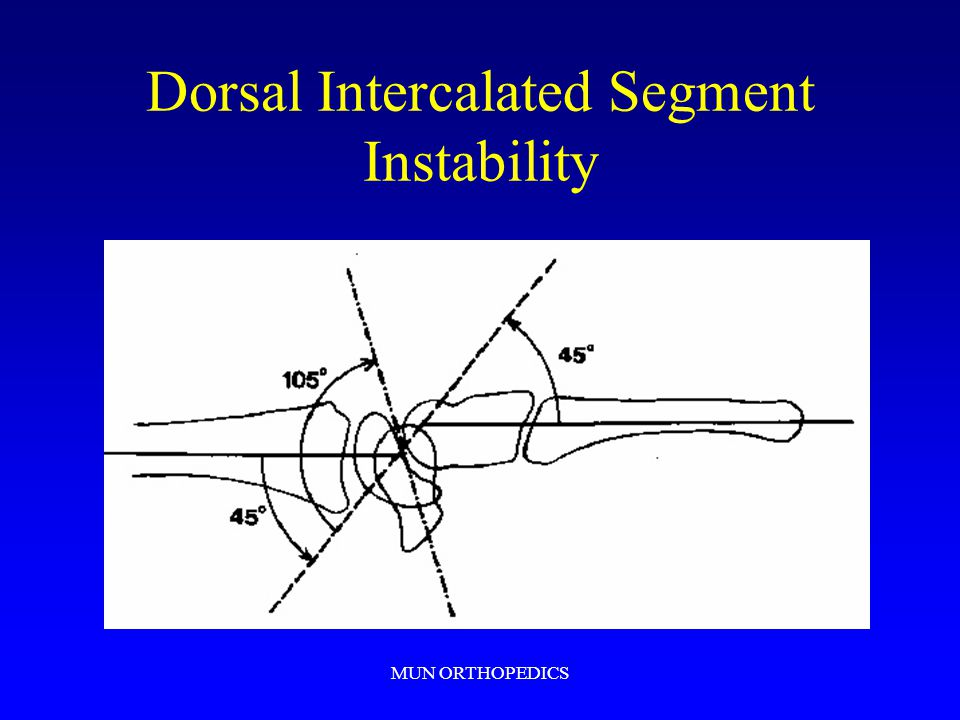 Dorsal Intercalated Segment Instability