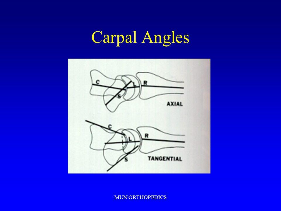 Carpal Angles MUN ORTHOPEDICS