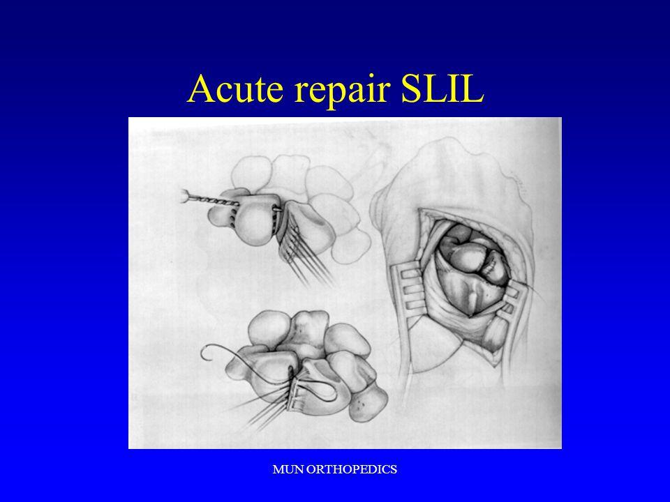 Acute repair SLIL MUN ORTHOPEDICS