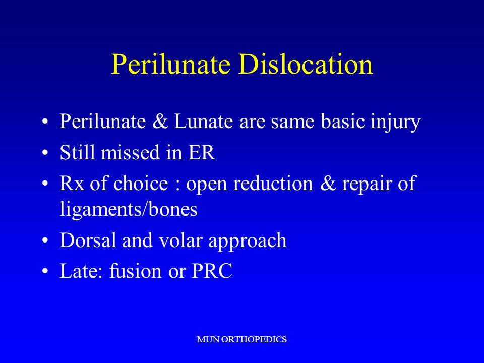 Perilunate Dislocation