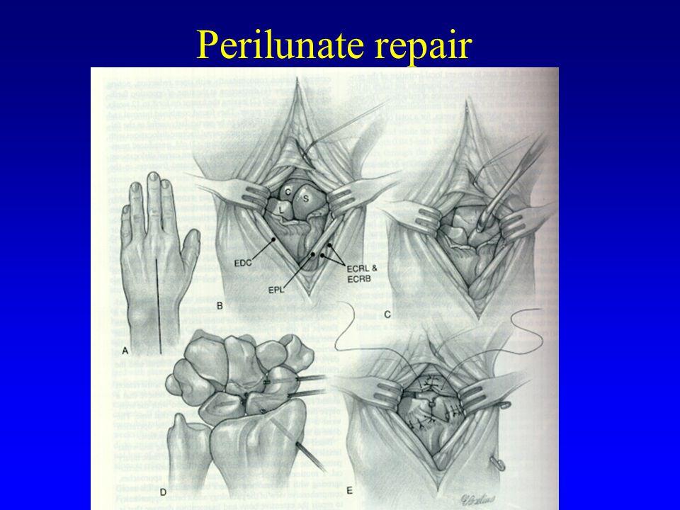 Perilunate repair MUN ORTHOPEDICS