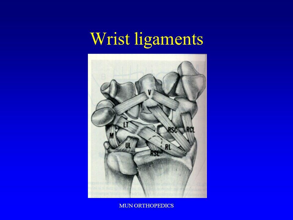Wrist ligaments MUN ORTHOPEDICS