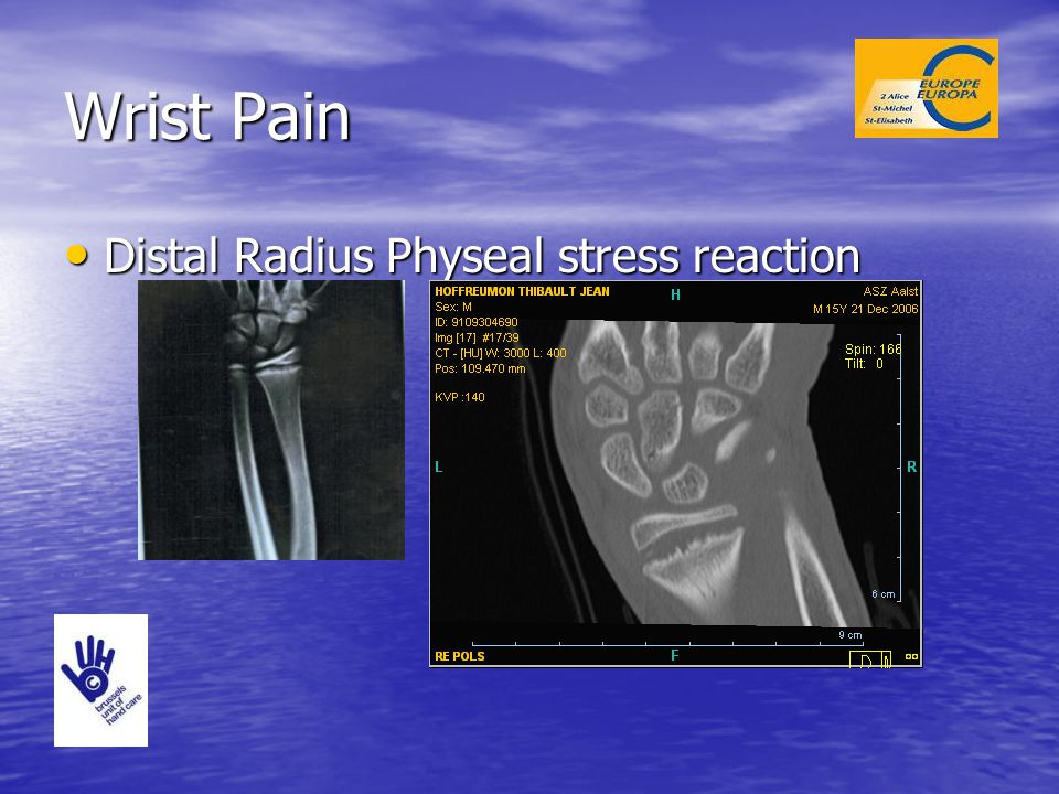 Wrist Pain Distal Radius Physeal stress reaction