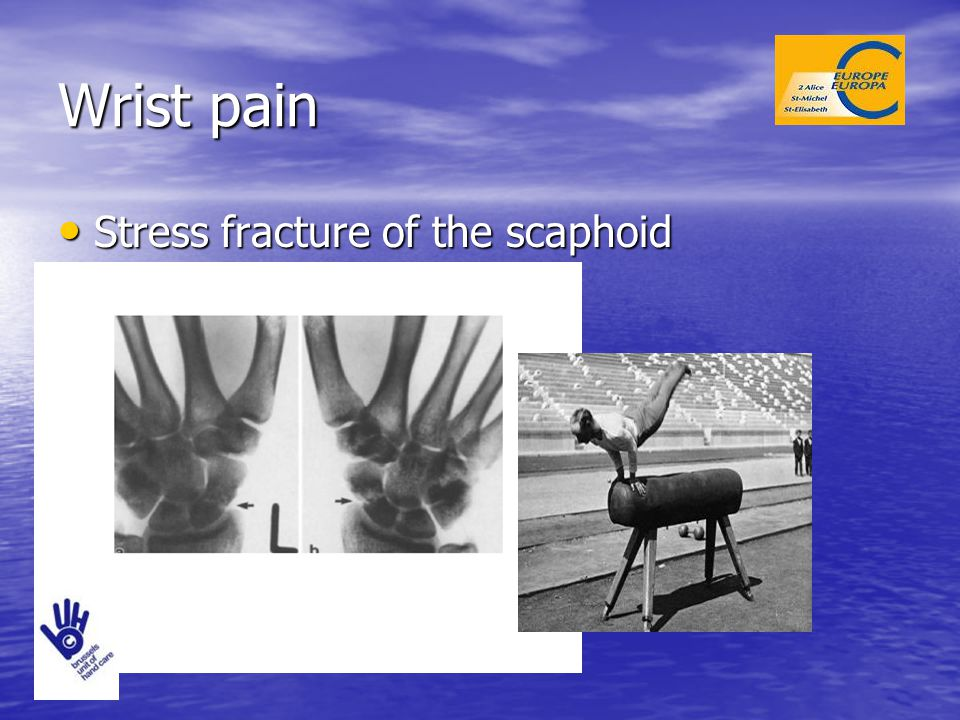 Wrist pain Stress fracture of the scaphoid