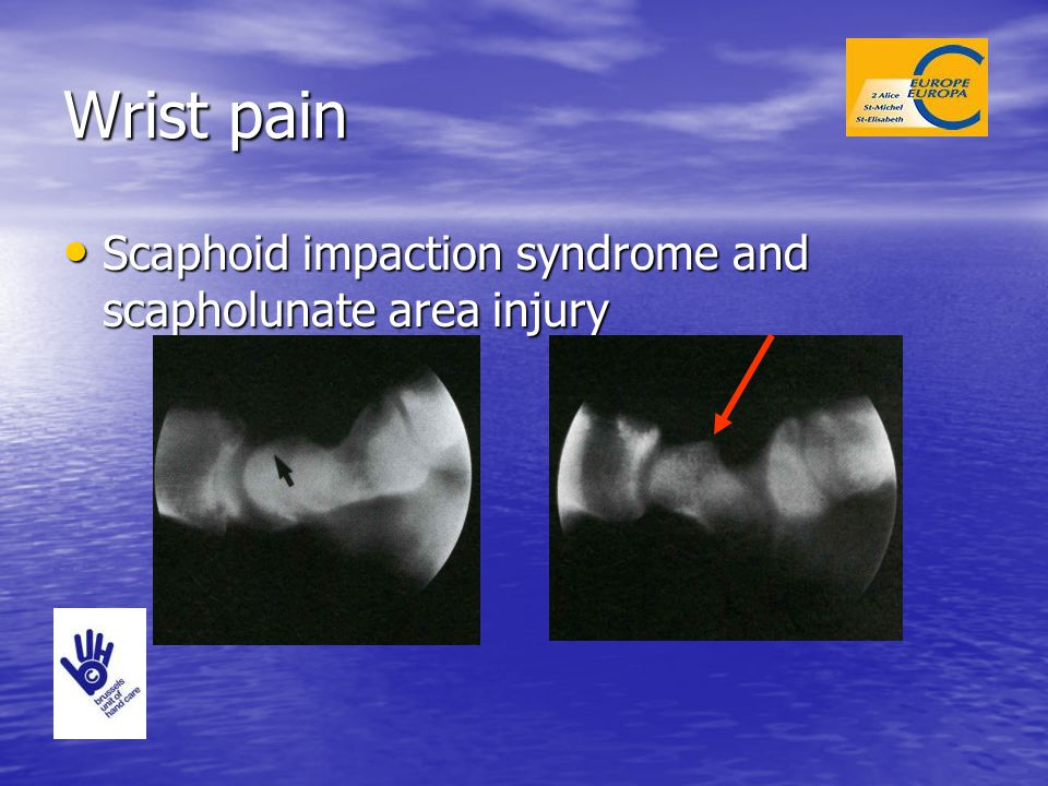 Wrist pain Scaphoid impaction syndrome and scapholunate area injury