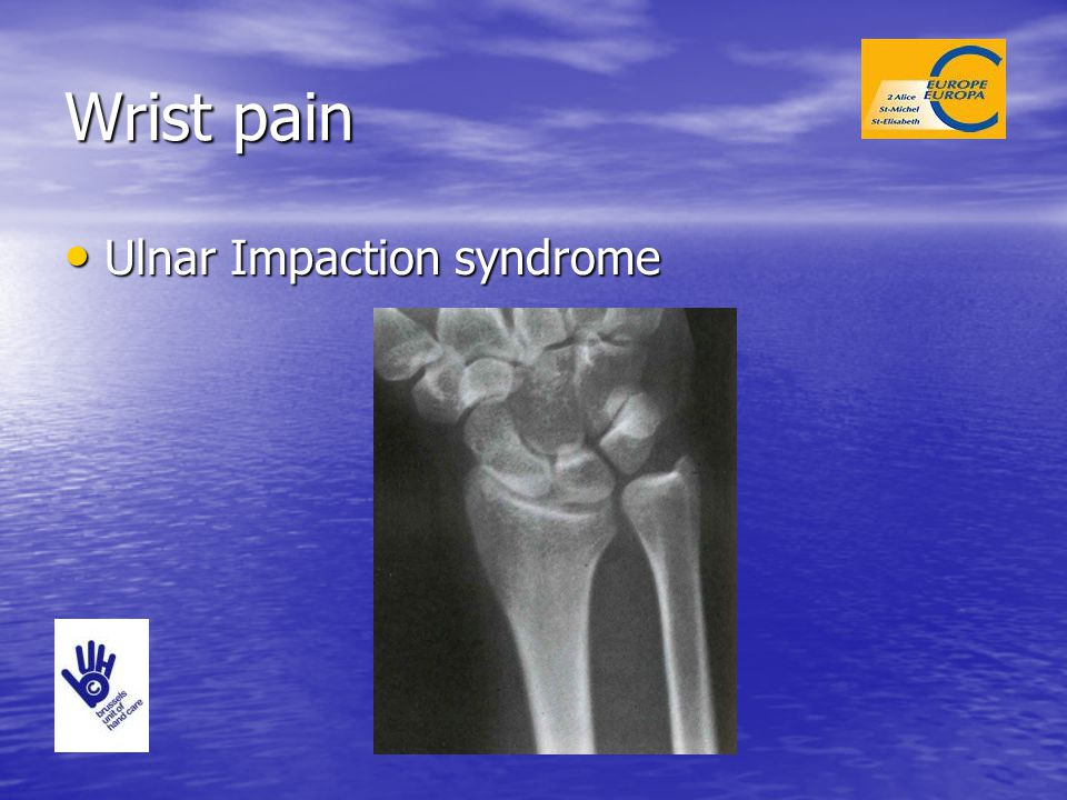 Wrist pain Ulnar Impaction syndrome
