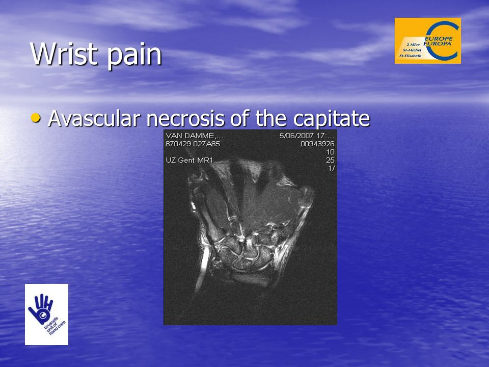 Wrist pain Avascular necrosis of the capitate