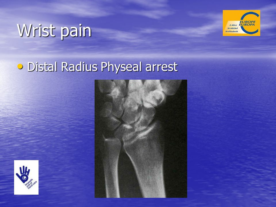 Wrist pain Distal Radius Physeal arrest
