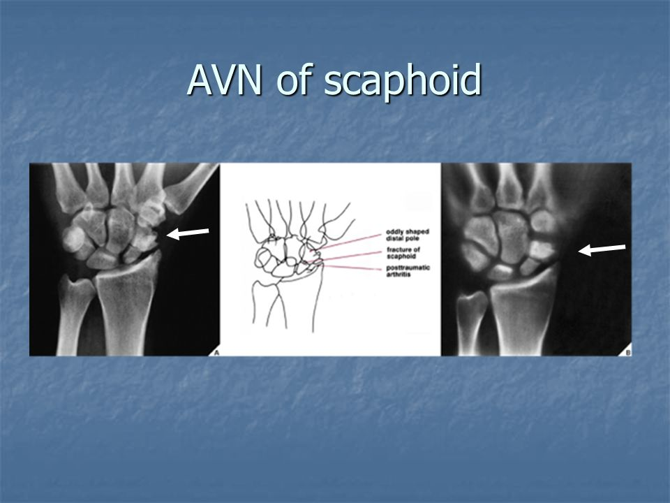 AVN of scaphoid