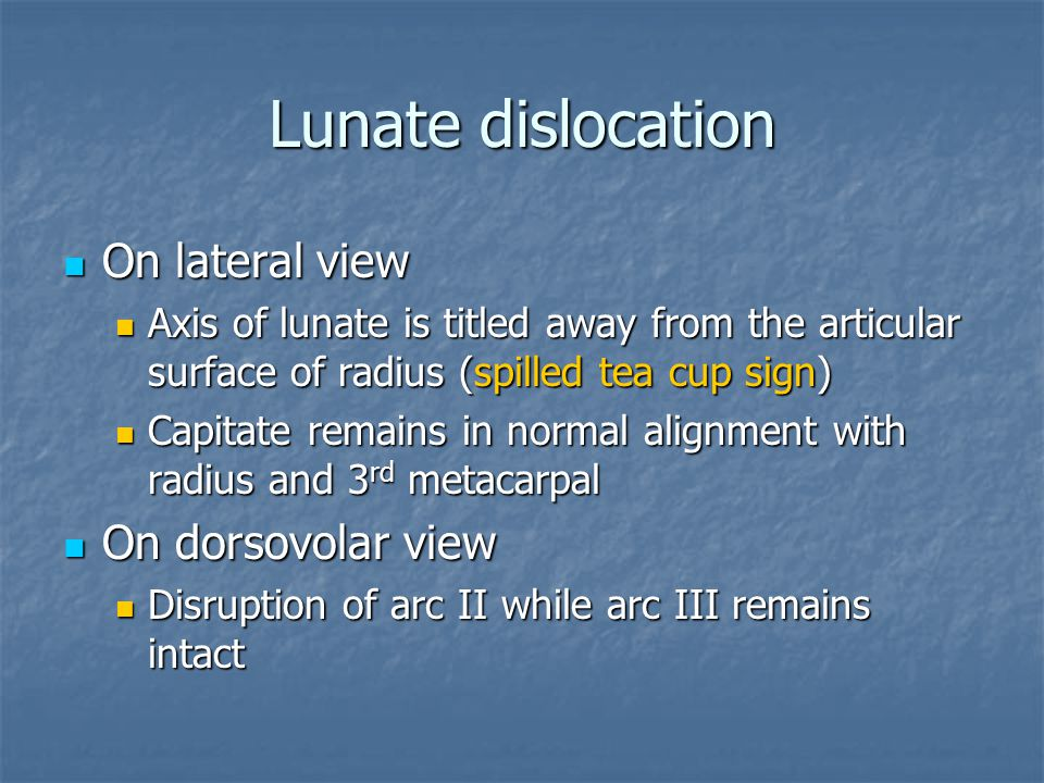 Lunate dislocation On lateral view On dorsovolar view