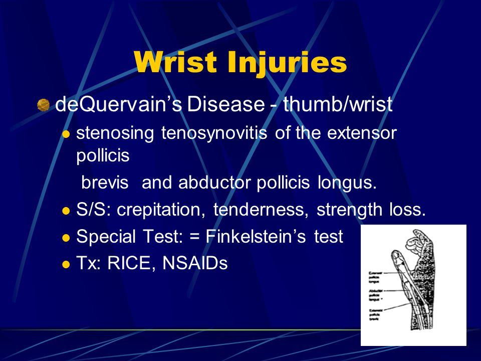 Wrist Injuries deQuervain's Disease - thumb/wrist