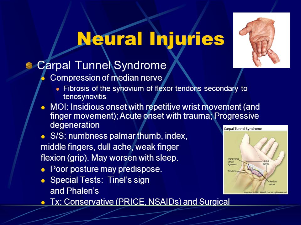 Neural Injuries Carpal Tunnel Syndrome Compression of median nerve