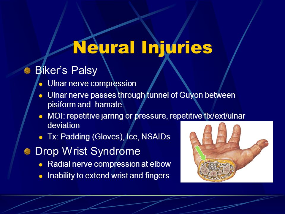 Neural Injuries Biker's Palsy Drop Wrist Syndrome