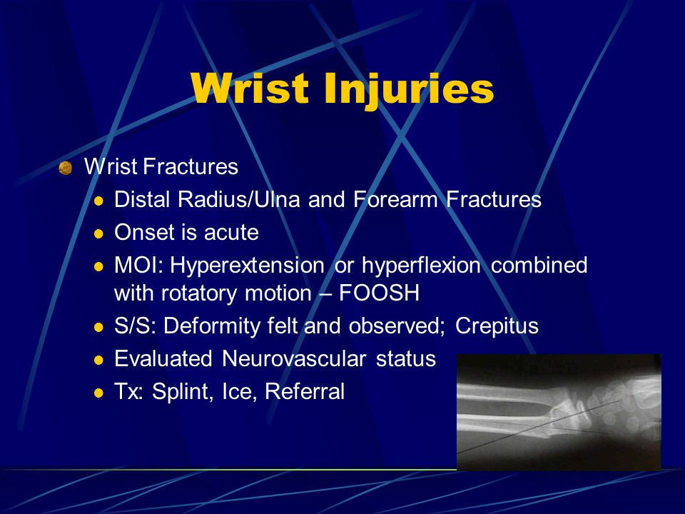 Wrist Injuries Wrist Fractures