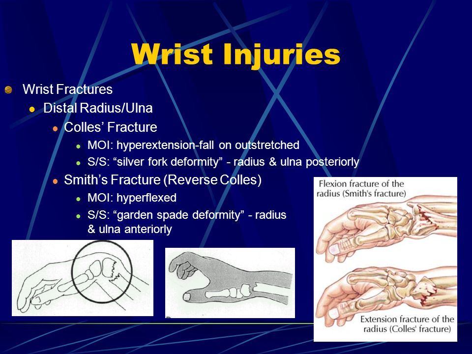 Wrist Injuries Wrist Fractures Distal Radius/Ulna Colles' Fracture