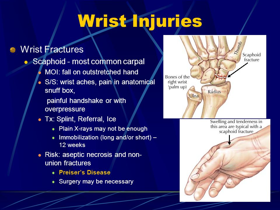 Wrist Injuries Wrist Fractures Scaphoid - most common carpal