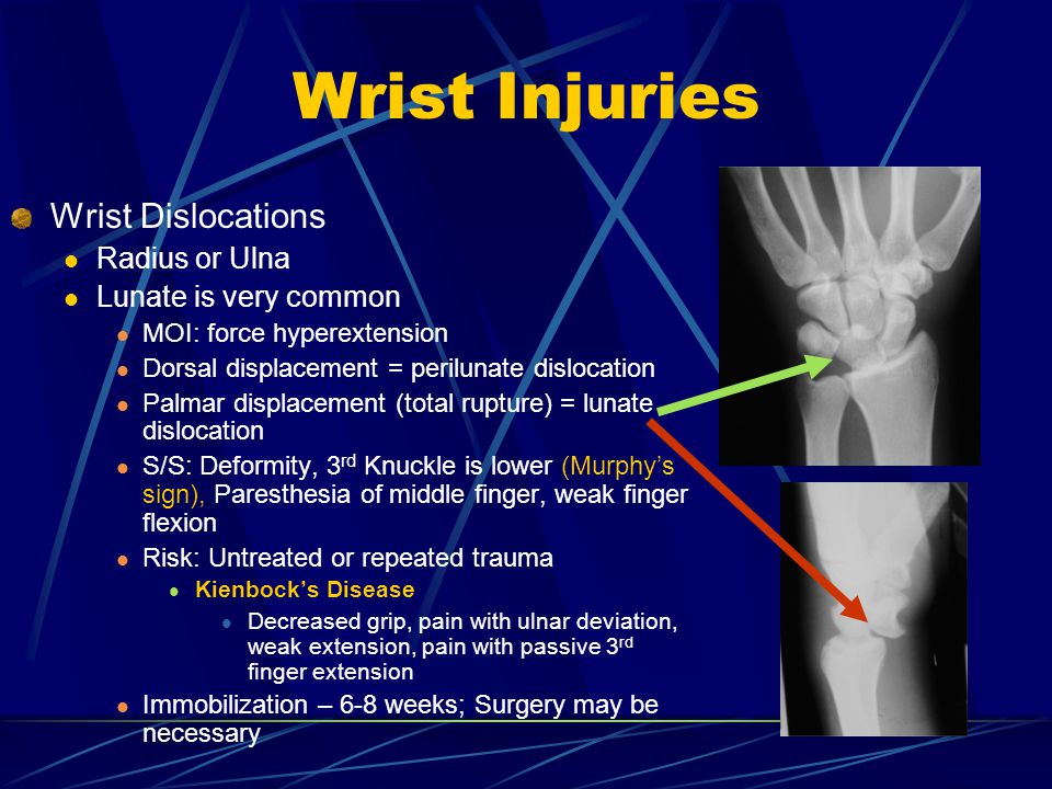 Wrist Injuries Wrist Dislocations Radius or Ulna Lunate is very common