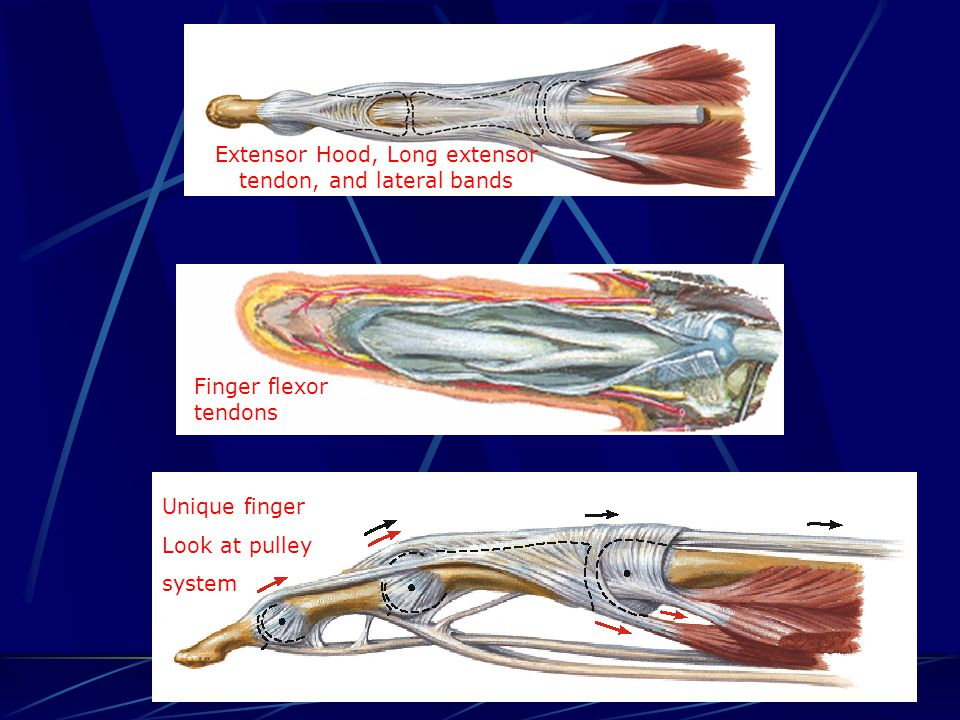 Extensor Hood, Long extensor tendon, and lateral bands