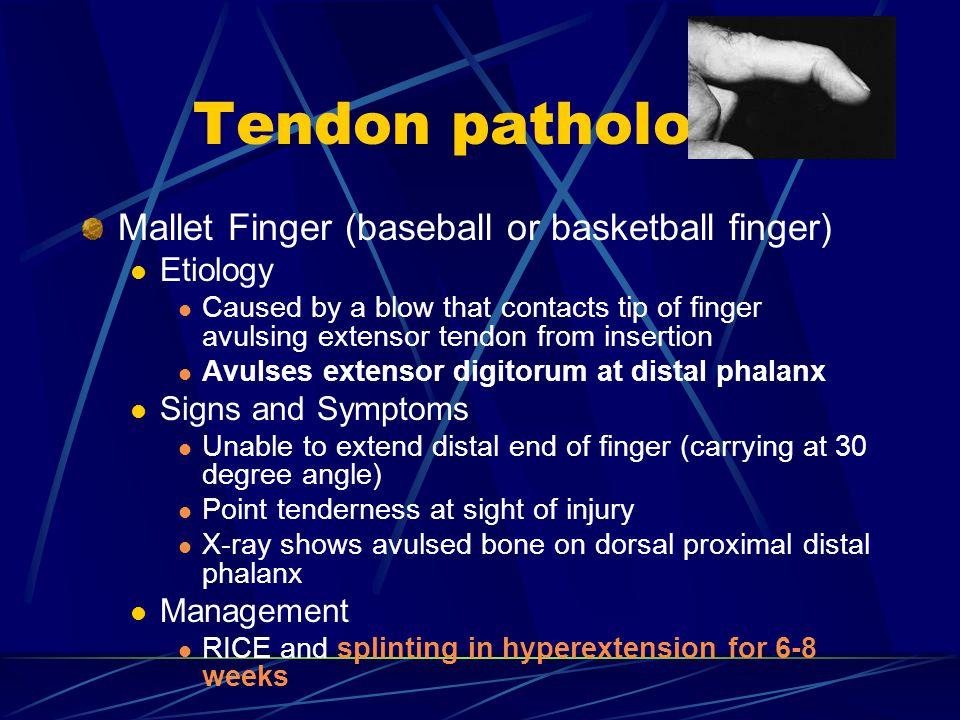 Tendon pathology Mallet Finger (baseball or basketball finger)