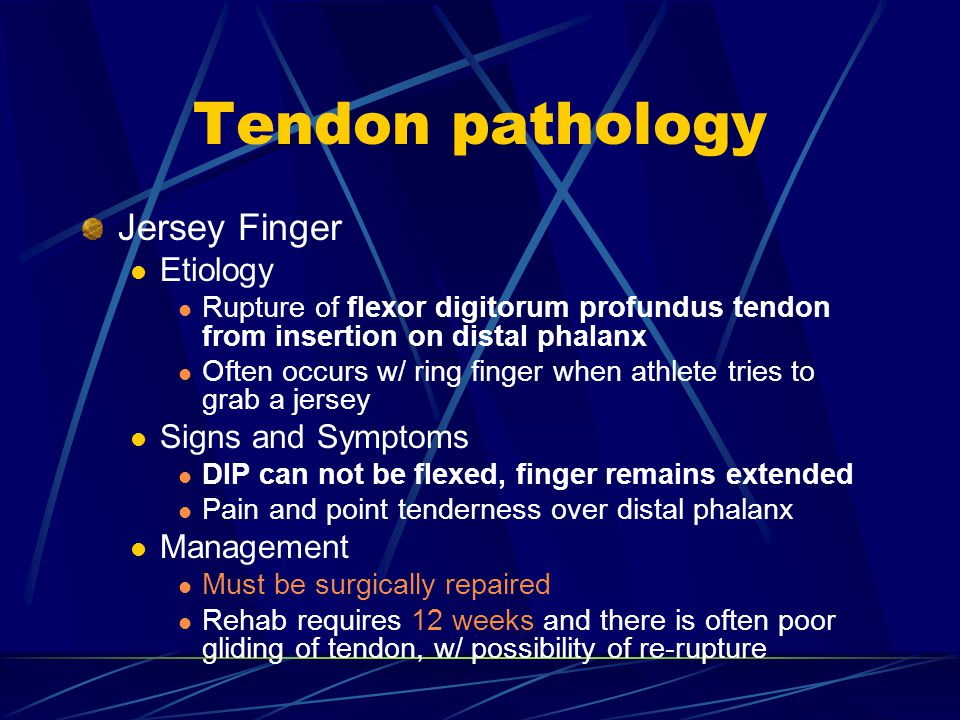 Tendon pathology Jersey Finger Etiology Signs and Symptoms Management