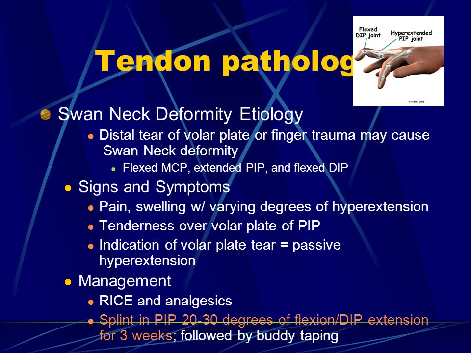 Tendon pathology Swan Neck Deformity Etiology Signs and Symptoms