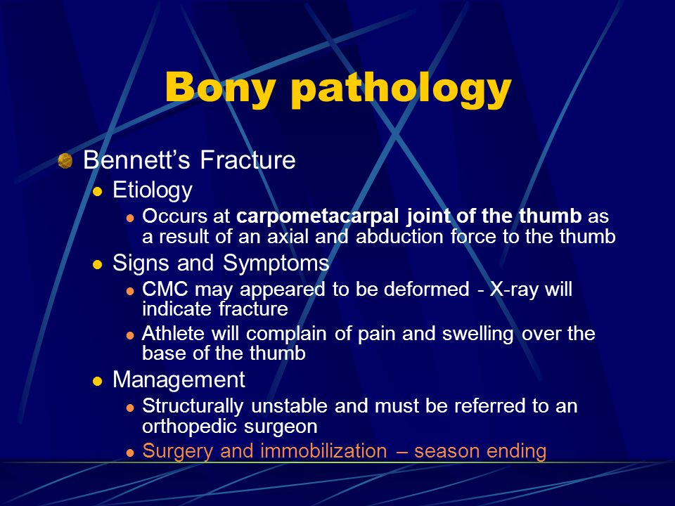 Bony pathology Bennett's Fracture Etiology Signs and Symptoms