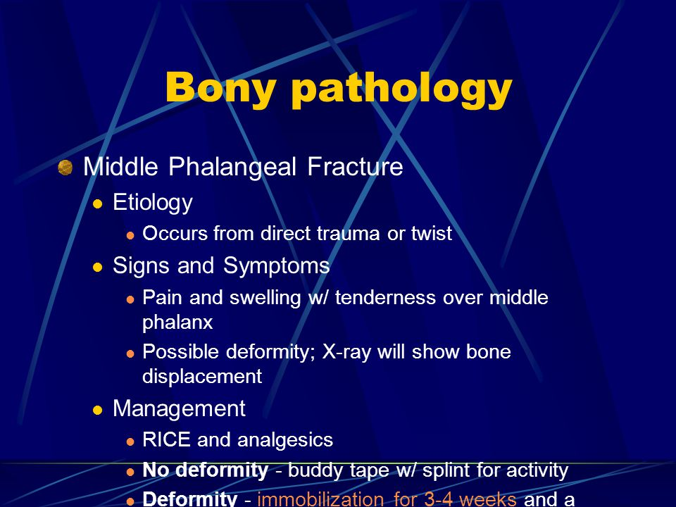 Bony pathology Middle Phalangeal Fracture Etiology Signs and Symptoms