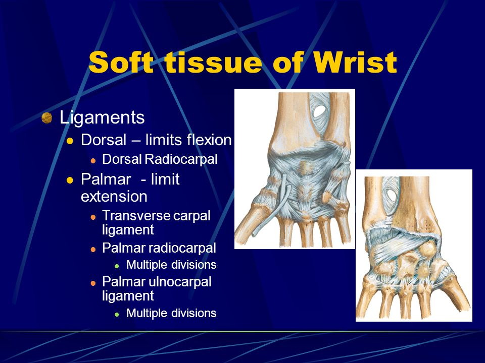 Soft tissue of Wrist Ligaments Dorsal – limits flexion
