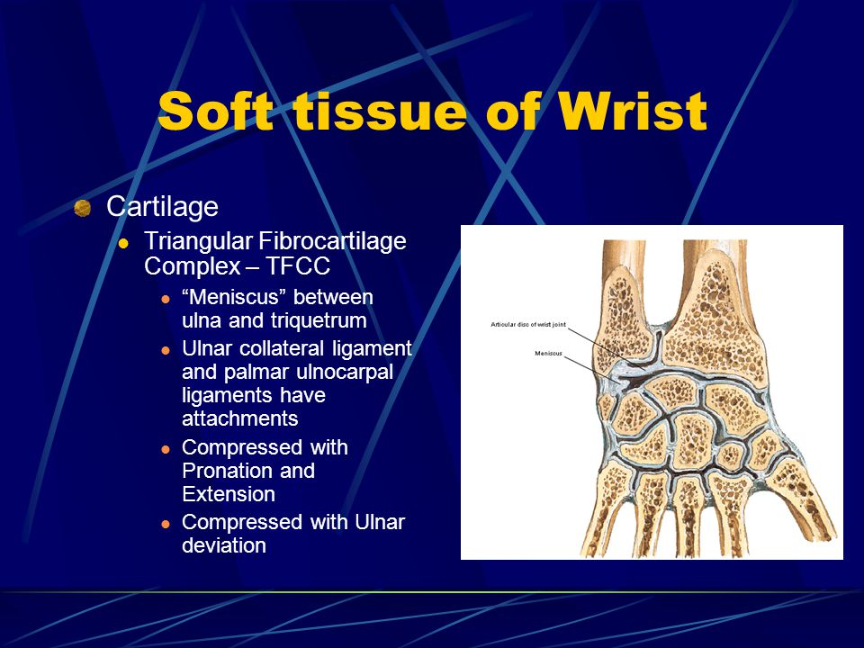Soft tissue of Wrist Cartilage