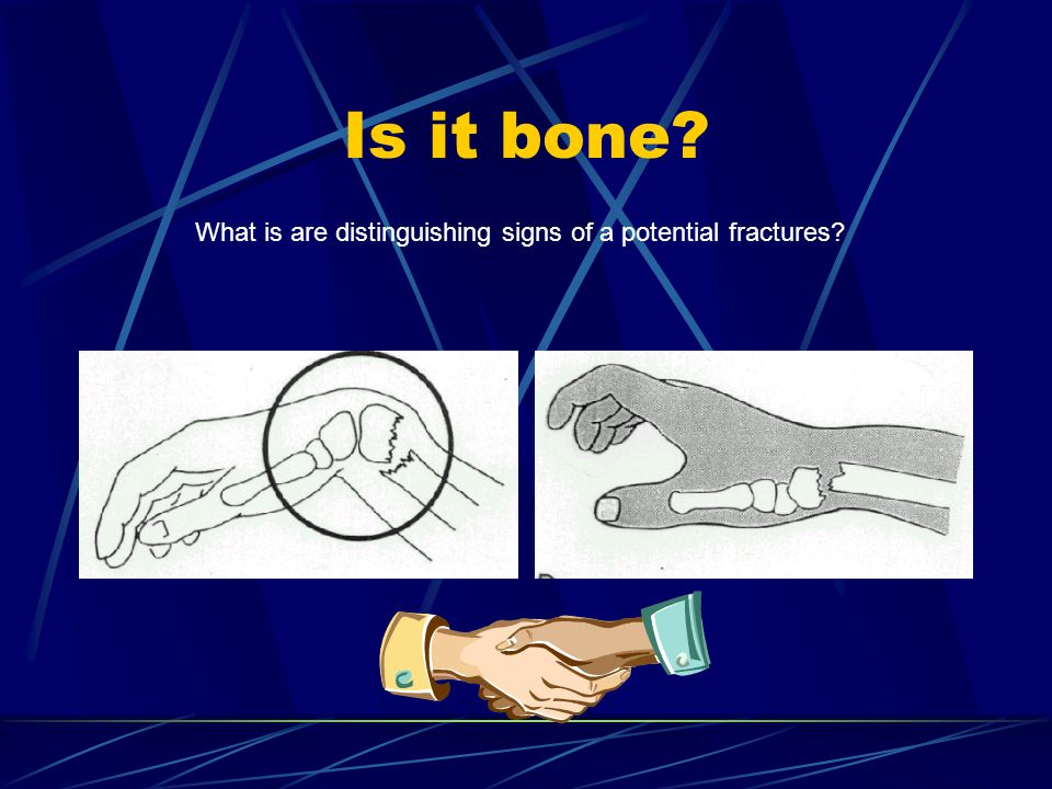 Is it bone What is are distinguishing signs of a potential fractures